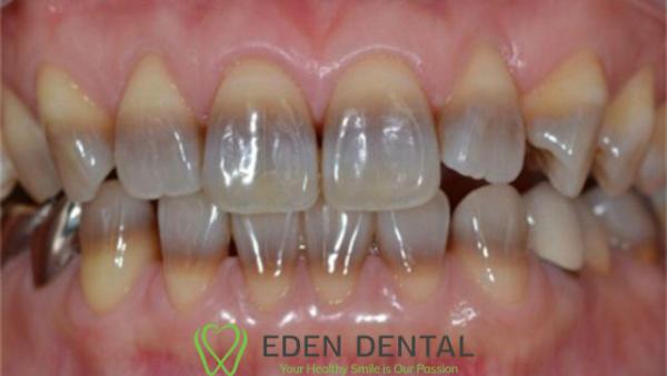 răng nhiễm màu nặng