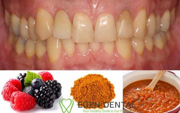 thức ăn gây vàng răng