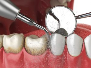 Cạo vôi răng có hại không