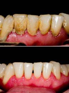 Cạo vôi răng trước và sau
