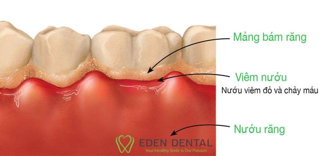 Viêm nướu và mảng bám răng