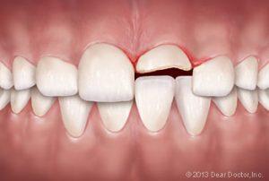gãy thân răng do chấn thương răng
