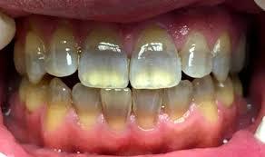 răng nhiễm tetracyclin