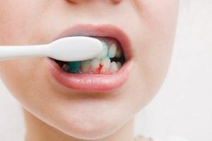 chảy máu nướu khi chải răng