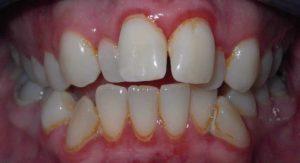chen chúc răng viêm nướu