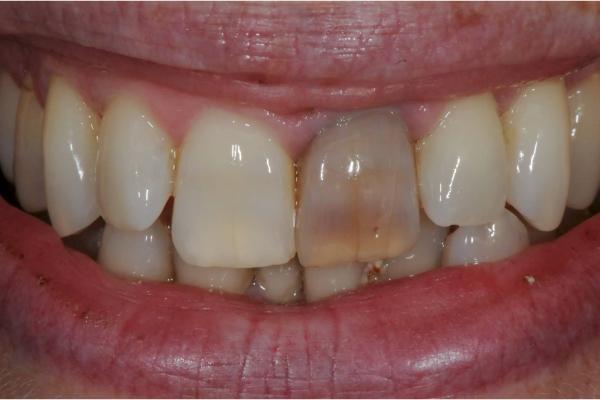 Đổi màu răng do viêm tủy