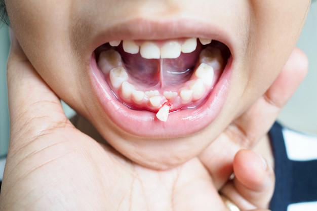 gãy răng 1