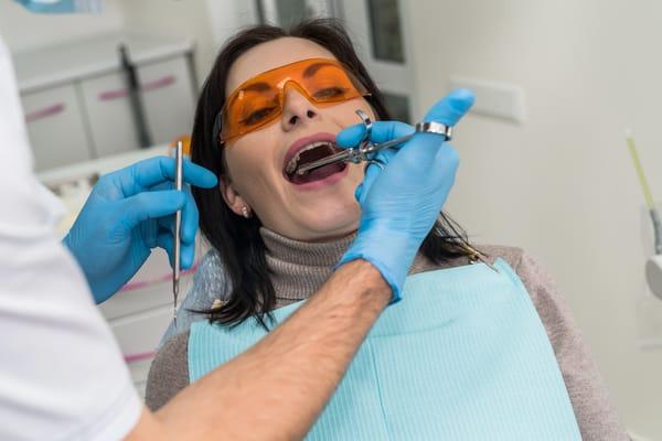Gây tê răng