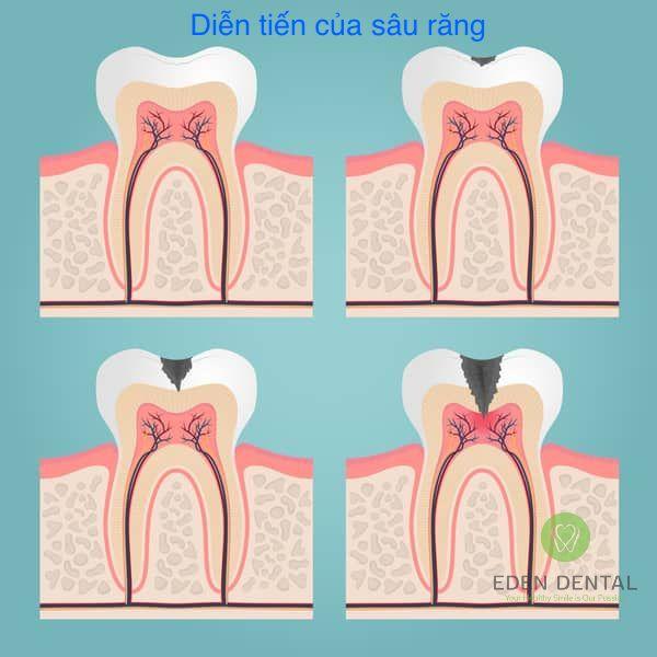 Diễn tiến của sâu răng