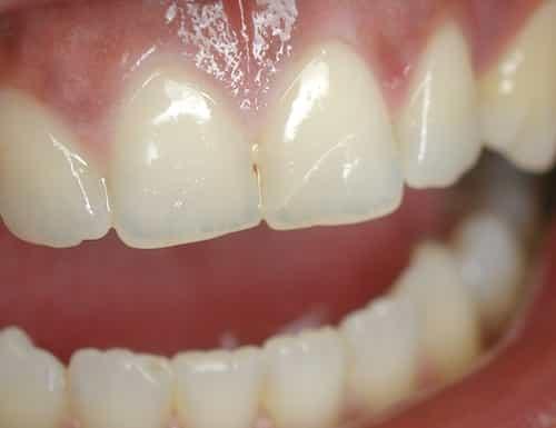 Răng bị nứt