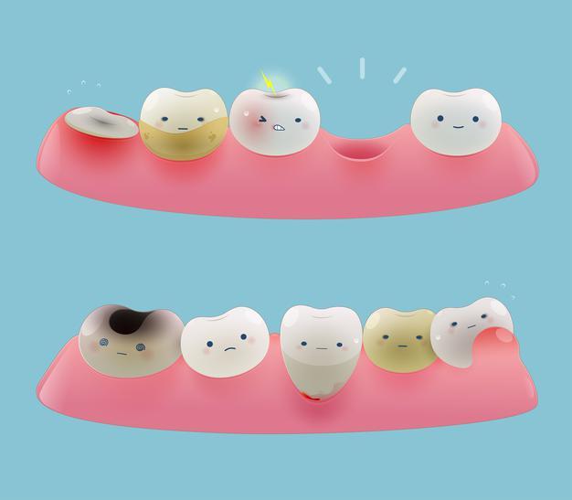 răng mọc không đều