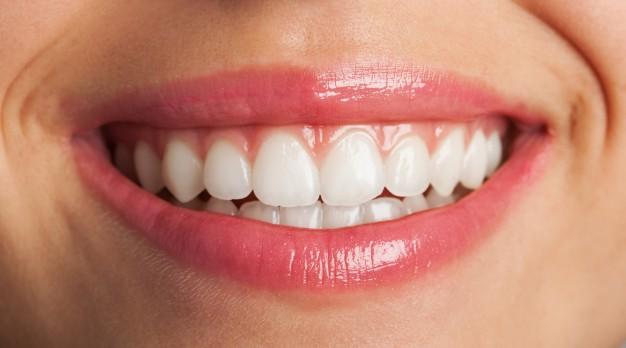 răng đẹp