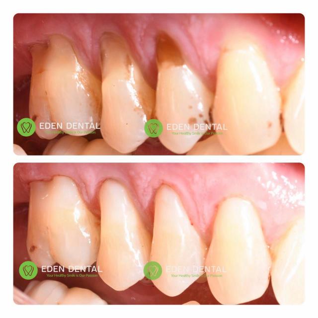 trám răng composite