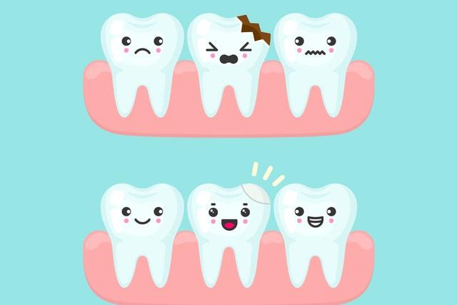 trám răng