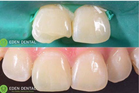 trám răng thẩm mỹ răng cửa bằng composite