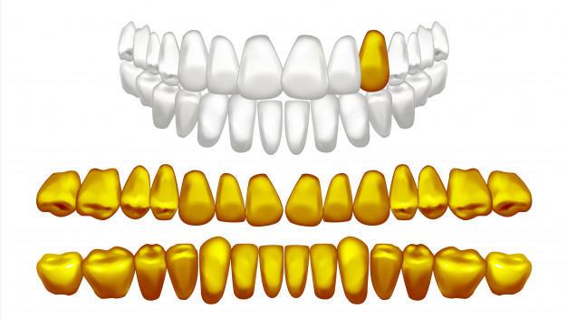 trám răng bằng vàng