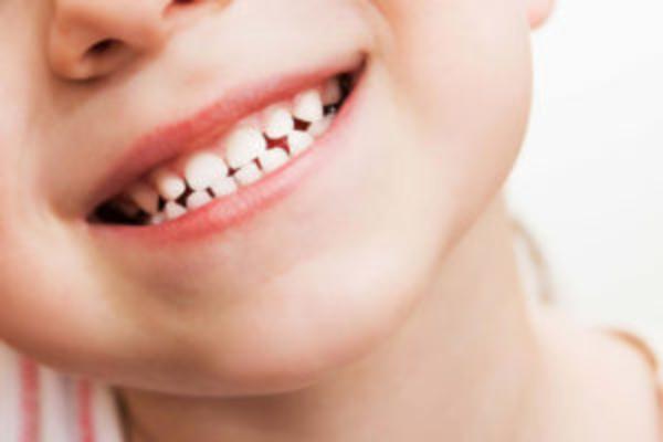 Bé bị sâu răng