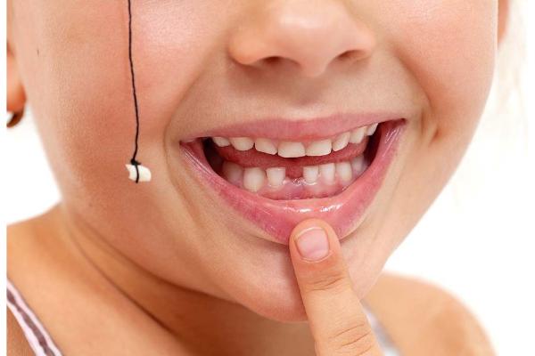 Buộc chỉ nhổ răng