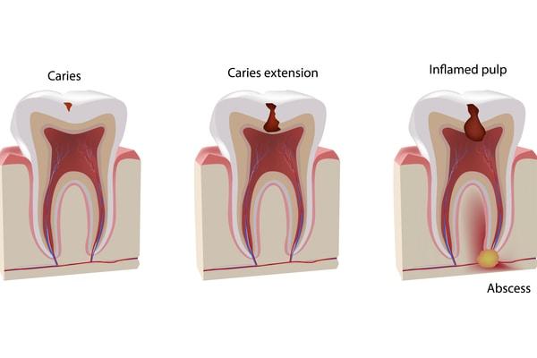 Che tủy răng
