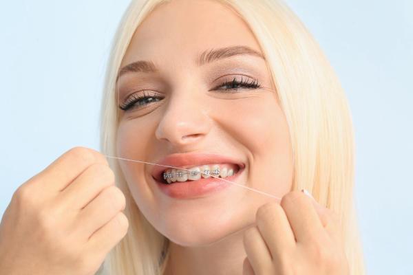 dùng chỉ nha khoa khi niềng răng