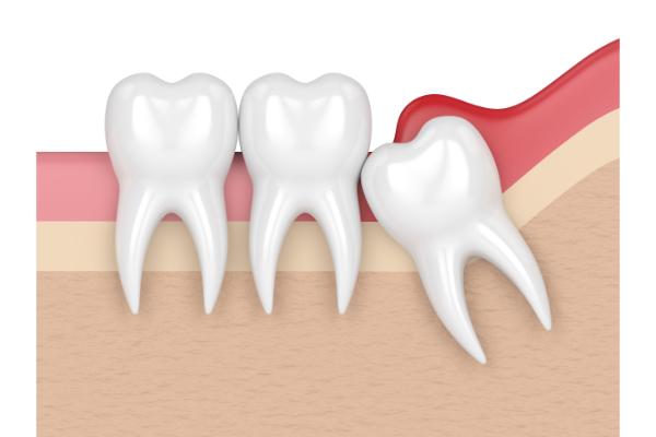Dấu hiệu răng khôn mọc