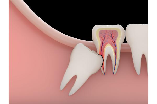 Trường hợp nên nhổ răng khôn