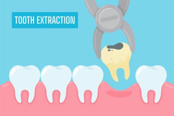 sau khi nhổ răng
