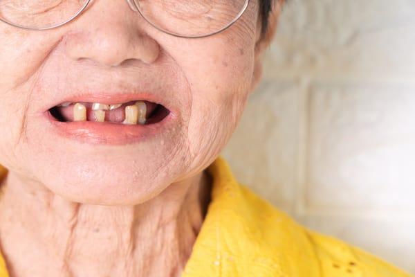 răng lung lay