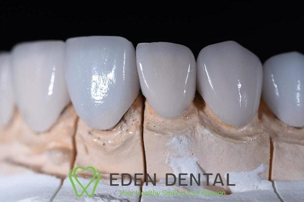 răng sứ thẩm mĩ